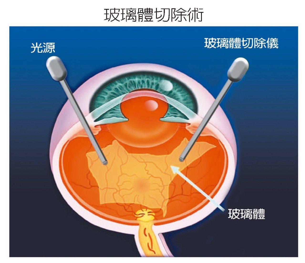 視網膜剝離必須透過玻璃體切除手術,才能讓視網膜復位。 圖/陳瑩山醫師提供