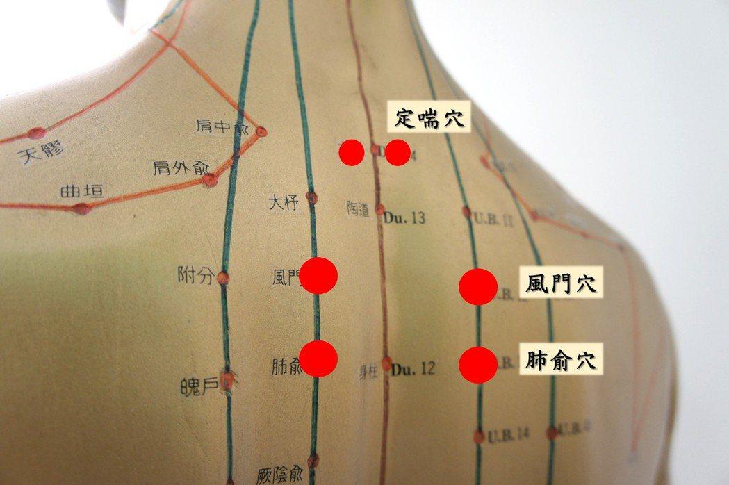 三伏貼在一定時間特定穴位使用,許多民眾反映效果佳效果。圖/奇美醫學中心提供