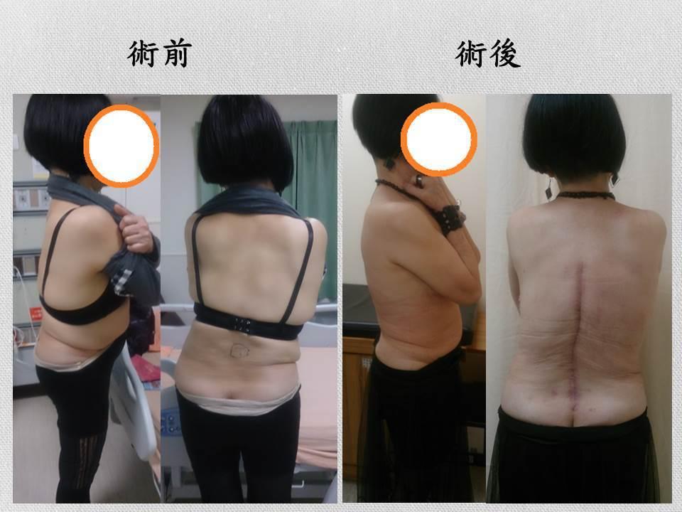 崔姓病患脊椎側彎高達47度。圖/門諾醫院提供