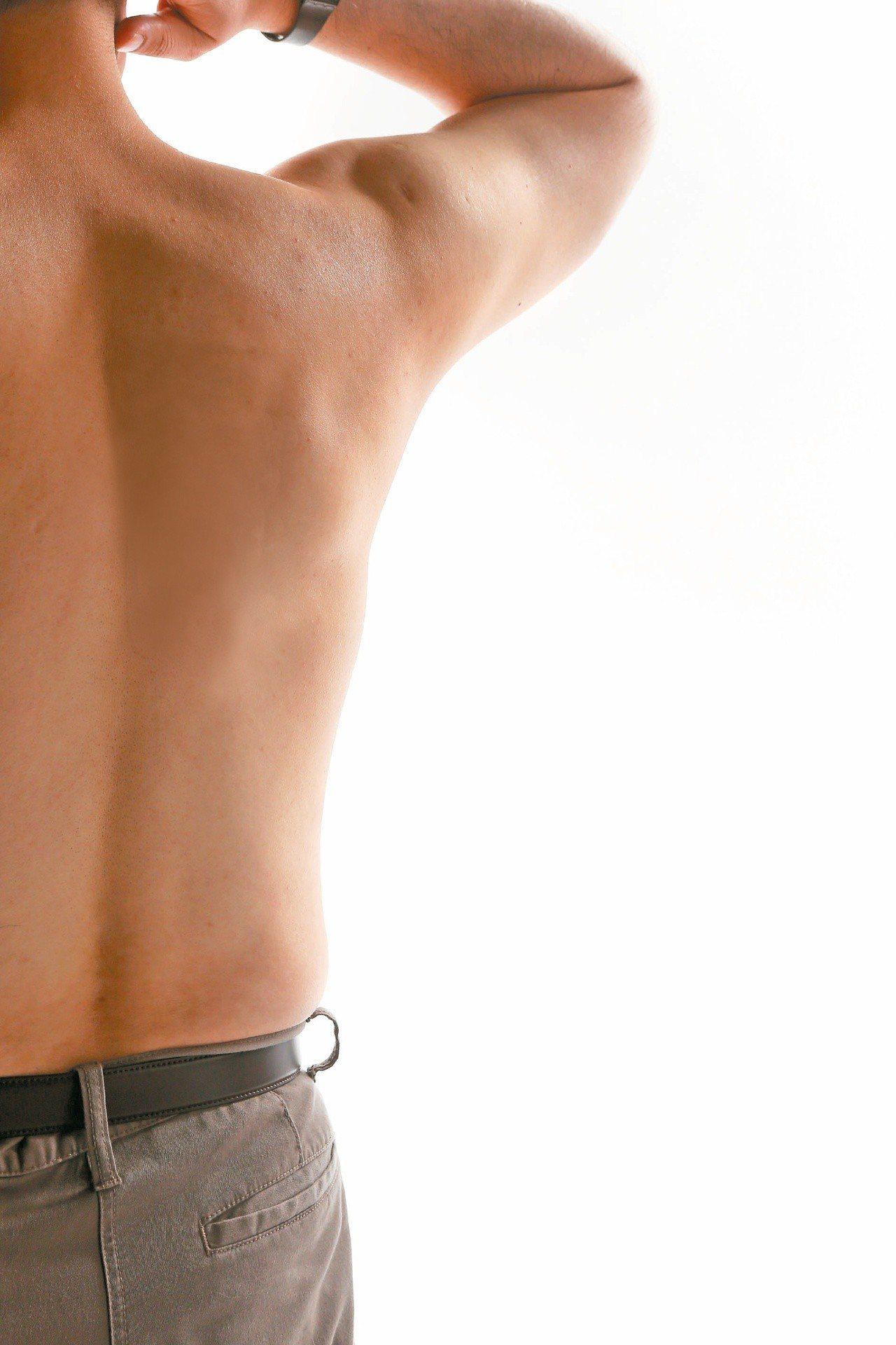「肩膀痛不一定是五十肩,五十肩一定會肩膀痛。」五十肩在復健科領域正確名稱為「沾黏...