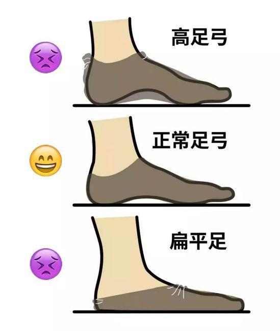 同一尺寸襪子穿在不同足弓上,會有不同效果。