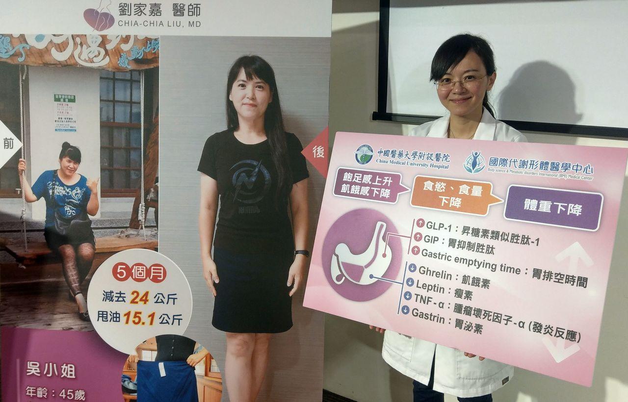 醫師劉家嘉(右)說明,45歲吳姓女業務員(左)原本體重106公斤,經接受胃內肉毒...