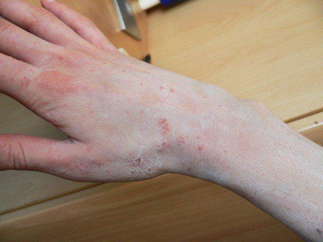 疥瘡。圖取自照護線上