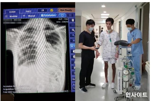 南韓男子因喝到泳池水引發肺炎,整個人瘦成皮包骨。圖取自insight