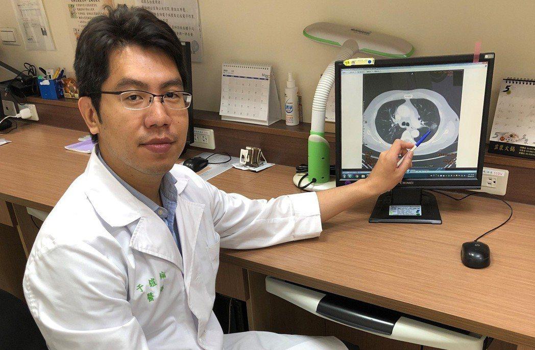 于鎧綸醫師呼籲,發現肺結節時務必要回診檢查。圖/台大醫院新竹分院提供