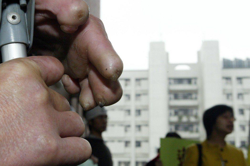 樂生院裡的漢生病患,攝於2005年。 圖/聯合報系資料照