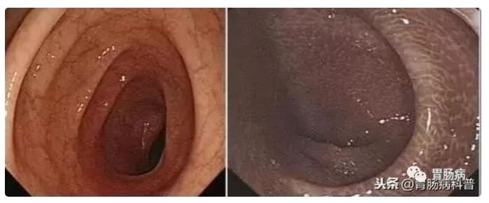 左為正常腸粘膜,右為黑腸病。