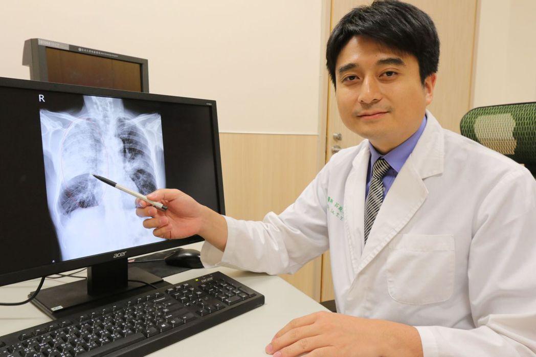 醫師黃建文說明,許姓病患經就醫,發現是嚴重肺炎合併膿胸轉加護病房治療。圖/亞大醫...