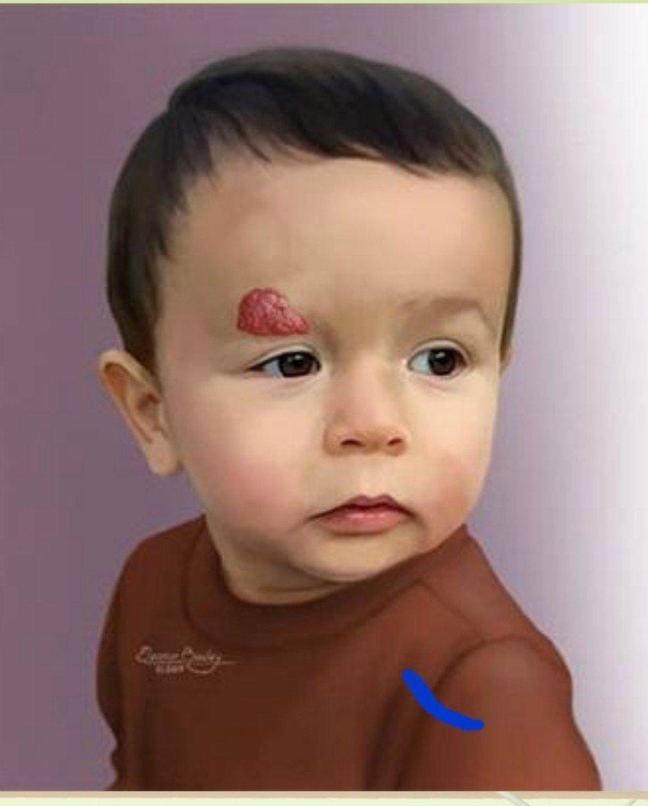 嬰兒型血管瘤好發在女音的脖子上。圖/成大提供