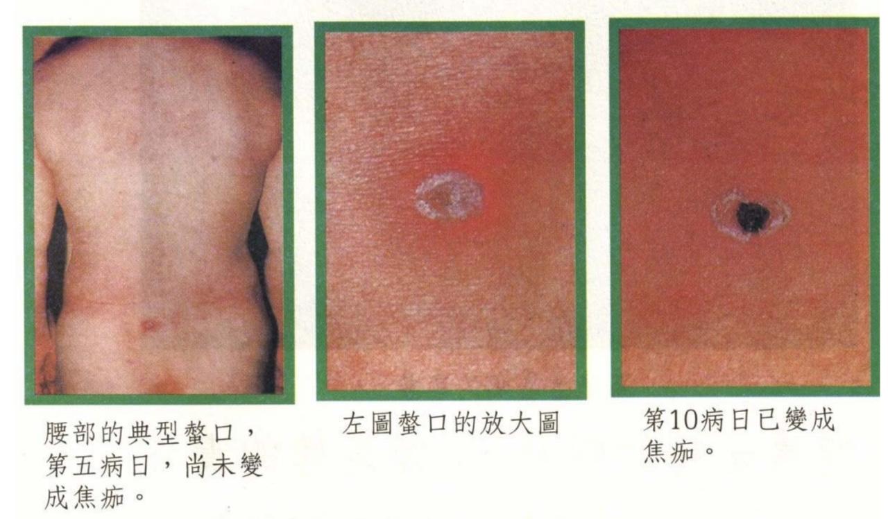 若被恙蟲叮咬,被叮咬處會有黑色結痂狀俗稱焦痂,是恙蟲病重要的判斷依據。圖/台東縣...