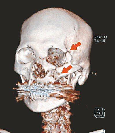 6旬婦低頭滑手機,不慎跌倒,造成顏面多處粉碎性骨折。 圖/台北馬偕醫院提供