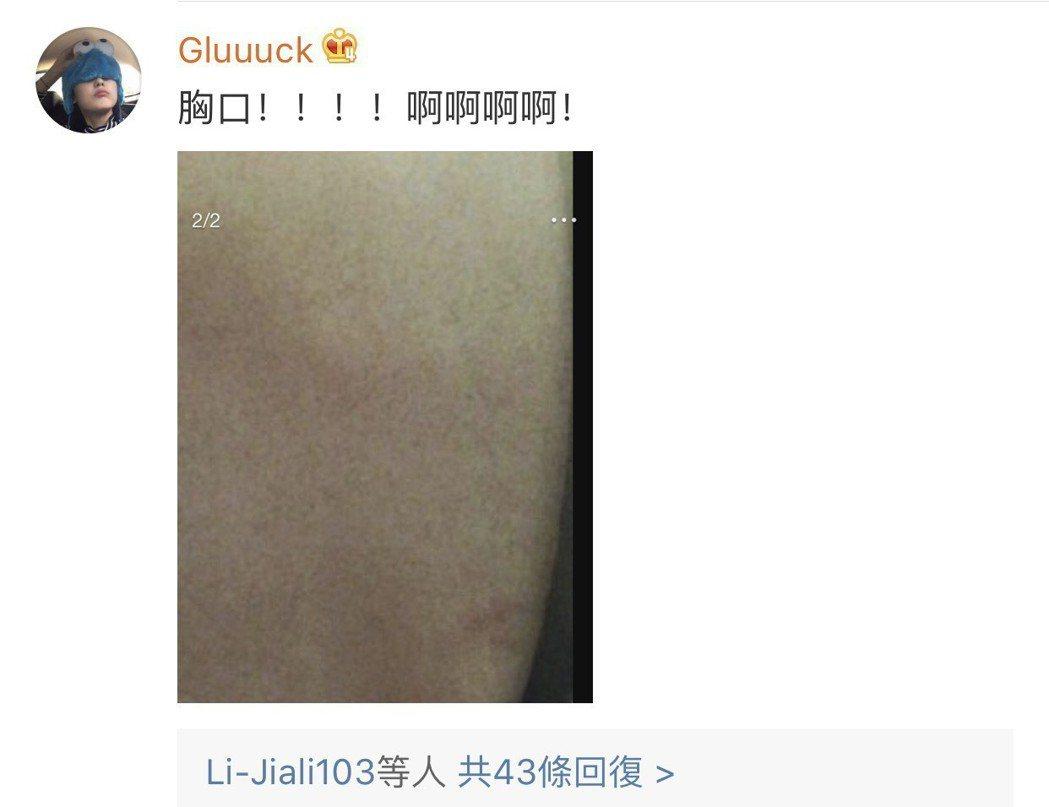 網友意外發現李榮浩胸口疑似被種草莓。圖/摘自微博