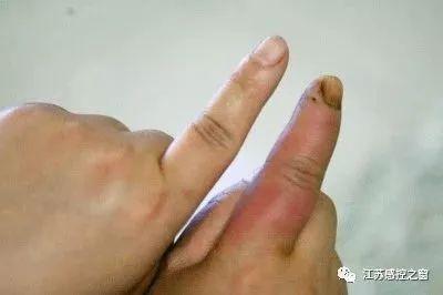 忽略小傷口,可能引發嚴重細菌感染惡化紅腫。圖片來源:環球網