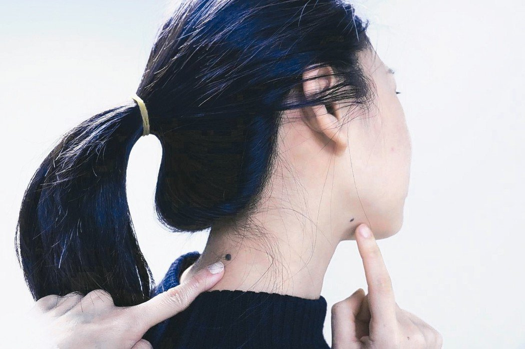 年輕人倘若有家族史,且身上痣較多,建議每半年到一年至皮膚科作皮膚鏡檢查。 本報資...