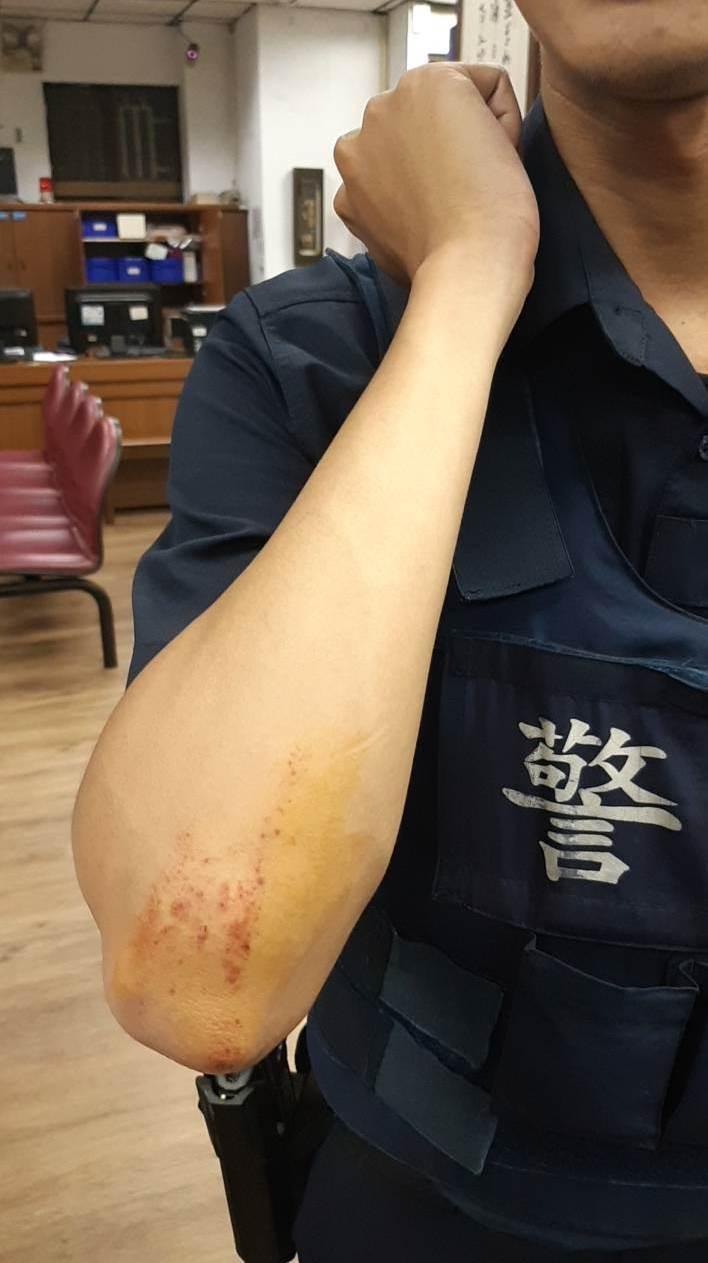 柯姓警員在拉扯中被醉漢弄傷。記者林昭彰/翻攝