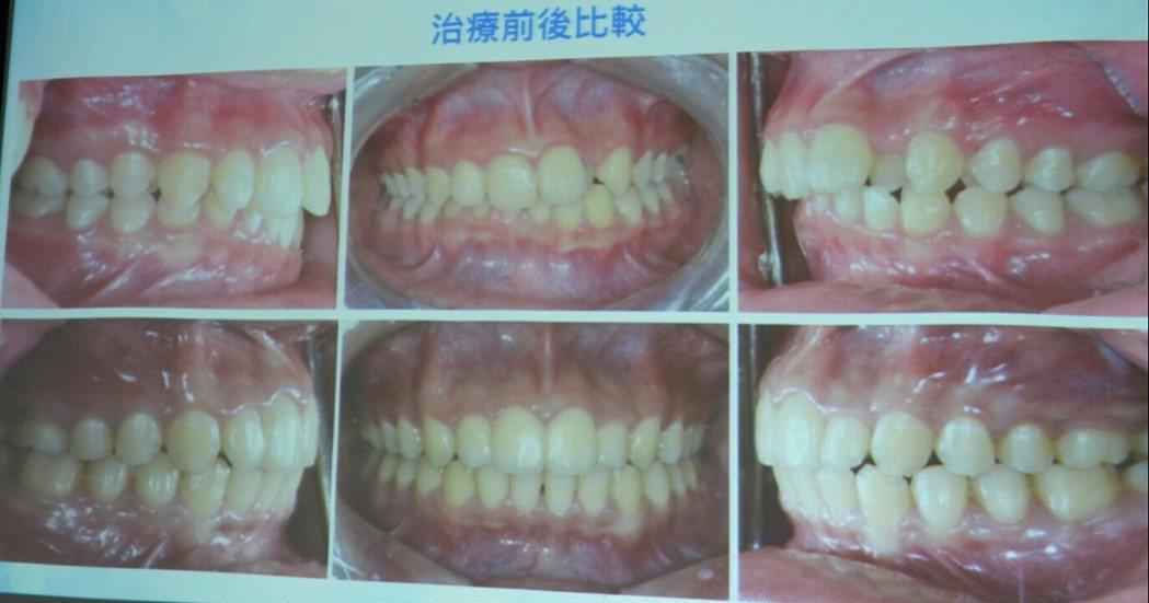 牙齒矯正前後比較,外觀就有明顯變化,上排是未矯正狀況。記者周宗禎/攝影