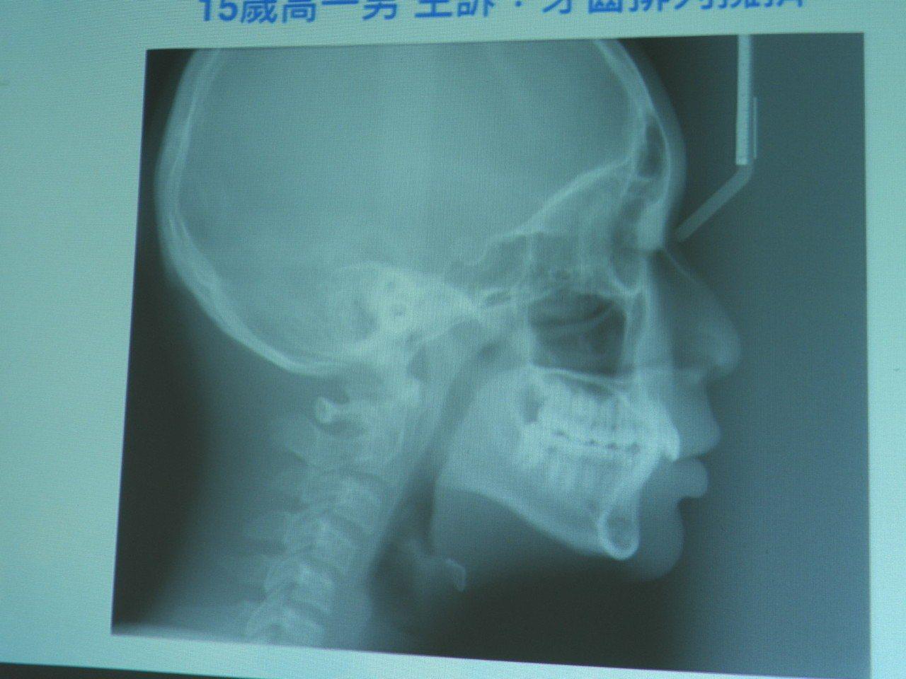 呂姓學生牙齒矯正前,上排牙齒明顯突出。記者周宗禎/攝影