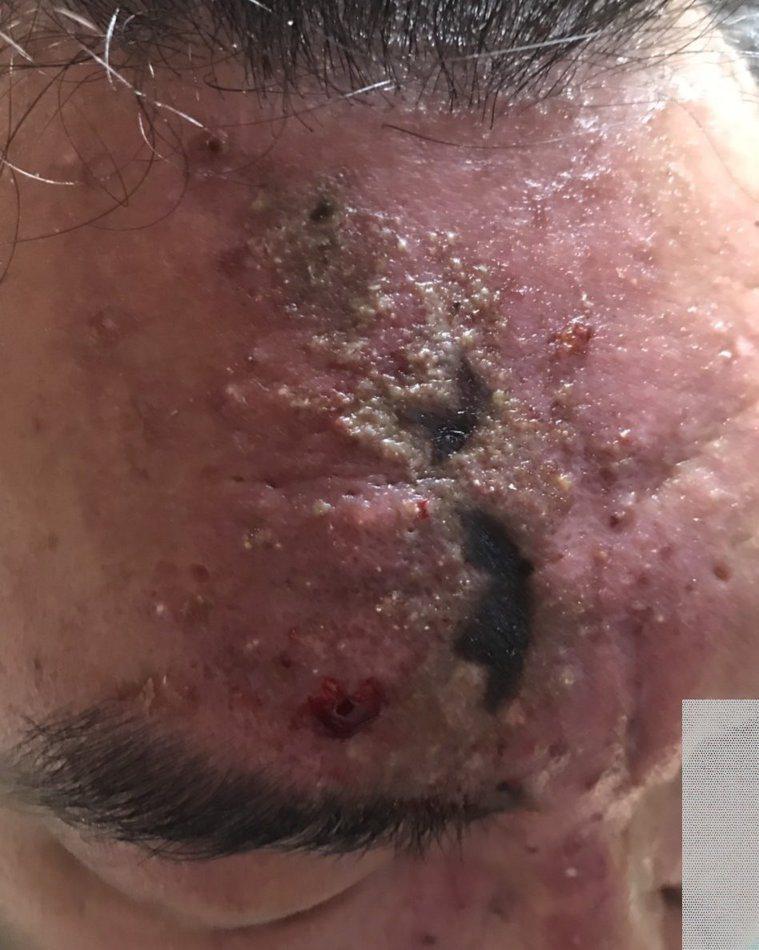 中年男子在臉部注射玻尿酸除皺,沒想到引發血管栓塞慘不忍睹。圖/王正坤提供