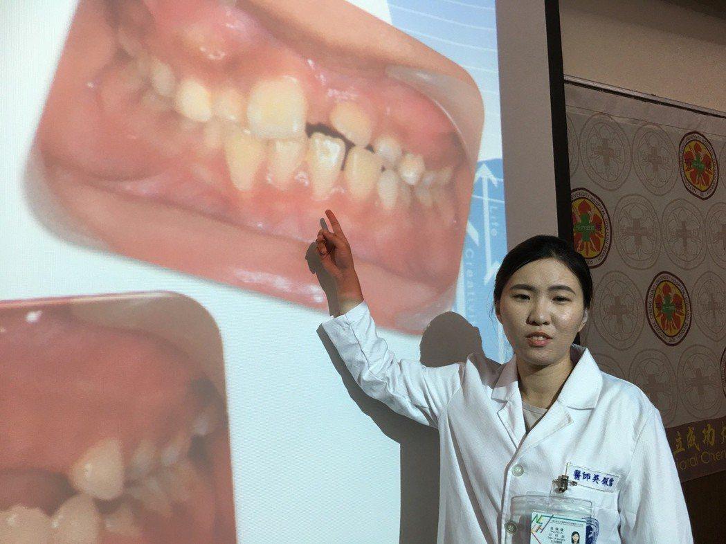 小朋友換牙後牙齒最東倒西歪,小心可能是上顎門牙阻生,若未及時矯正,不僅影響美觀、...