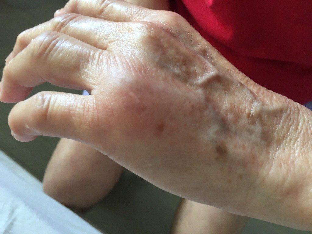 手上青筋明顯是身體不好的關係嗎?圖/部立基隆醫院提供