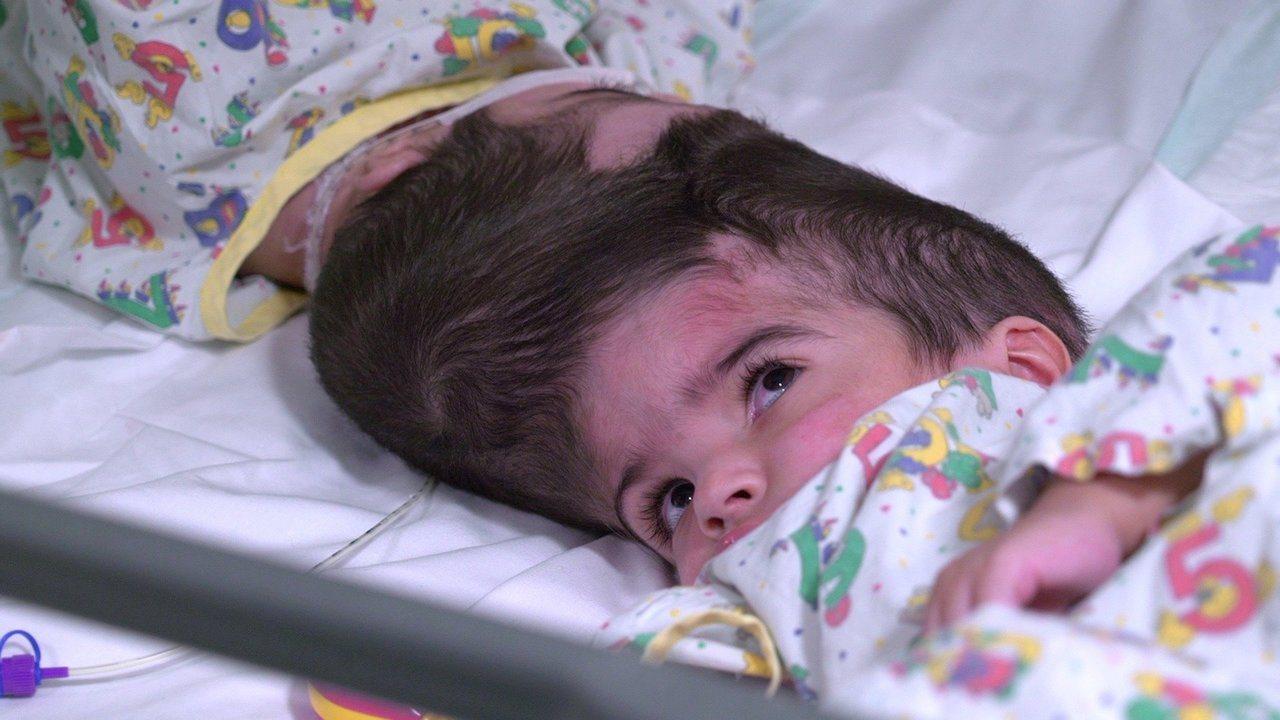 一對巴基斯坦的連頭2歲女嬰在接受超過50小時的手術後,不只是成功分離且已順利出院...