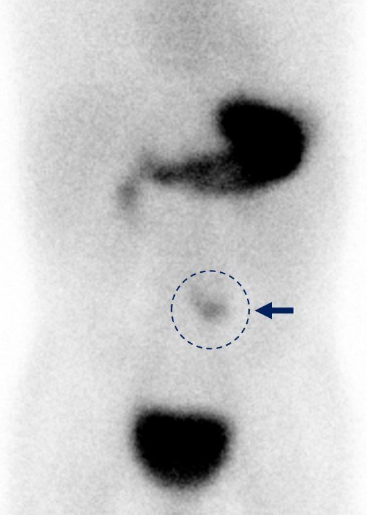 圓圈處為核醫檢查梅克爾憩室顯影處。圖/台大醫院新竹分院提供