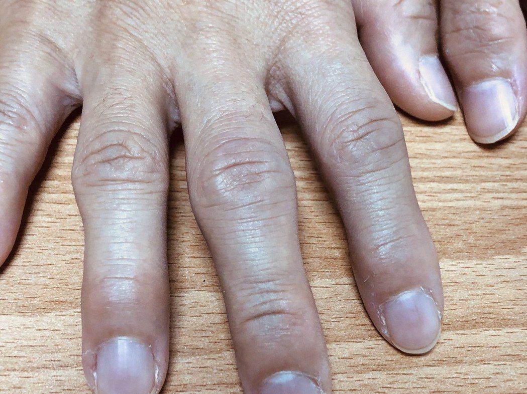 電腦族長期打電腦,過度使用手指使得關節變形、老化,退化性關節炎上身。圖/醫師洪維...