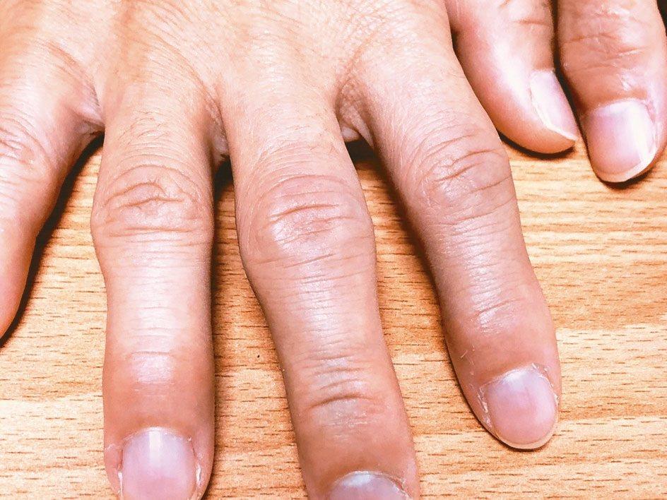 電腦族長期打電腦,過度使用手指使得關節變形、老化,退化性關節炎上身。 圖/醫師洪...
