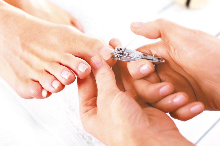 甲溝炎俗稱凍甲,常因不當指甲修剪造成。 圖/123RF