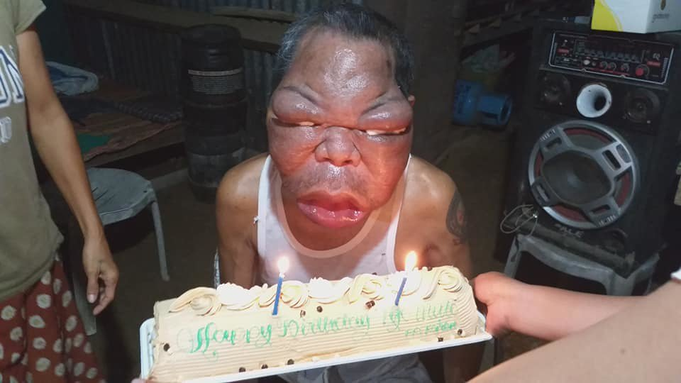 皮拉皮爾3年前患上鼻竇炎,之後整塊臉愈來愈腫到無法工作,家中頓時失去經濟支柱。圖...