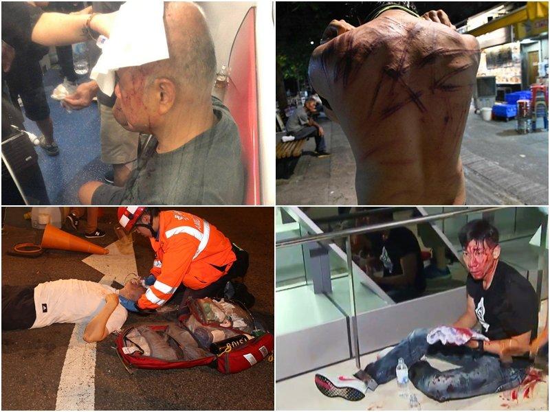 香港元朗暴力事件造成至少36人受傷送院。取自星島網