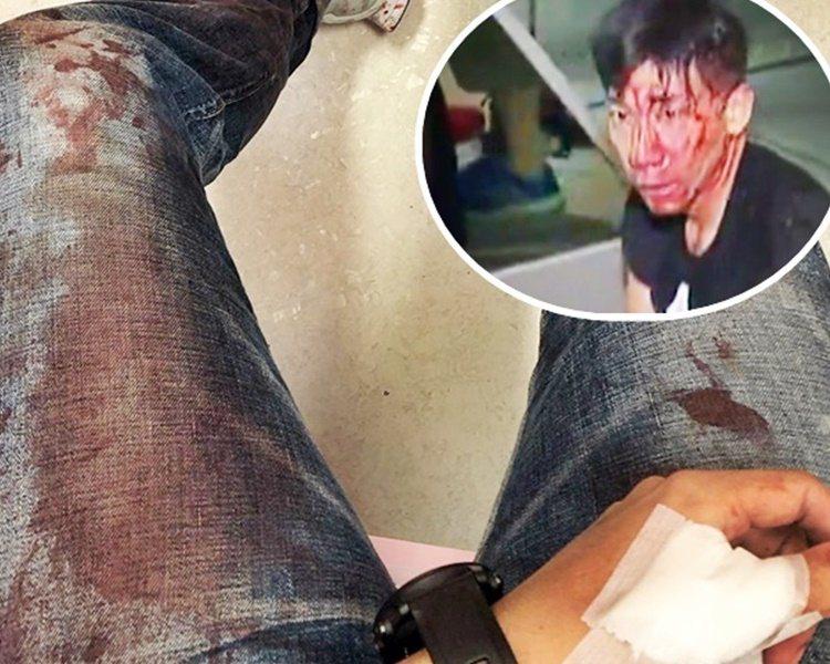 柳俊江自拍染血牛仔褲。小圖為柳俊江血流披面。取自星島網
