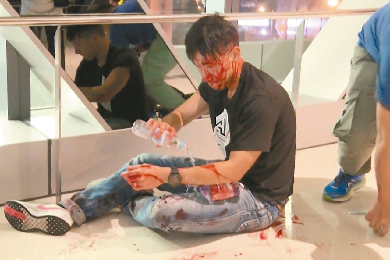 廿一日深夜,香港元朗地區出現大批白衣人暴打身穿黑衣的民眾和記者,一位媒體人被打,...