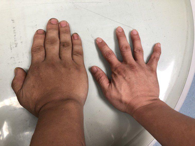 該名鈑金工人的手腳明顯較常人大。圖/大里仁愛醫院提供