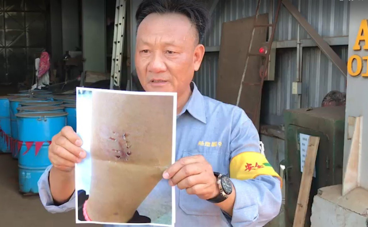台船基隆廠區人員出示員工被流浪狗咬傷照片。記者游明煌/翻攝