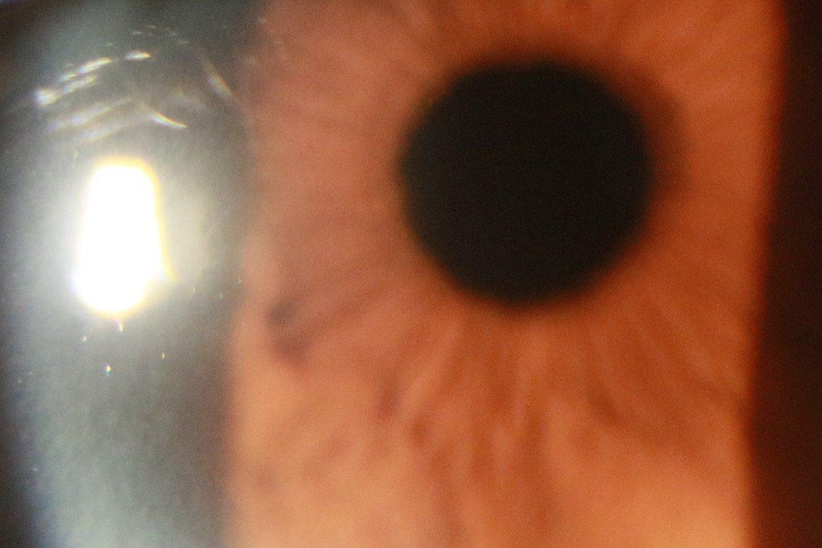 陳男經水晶體置換術後,大幅改善視力。圖/台北慈濟醫院提供