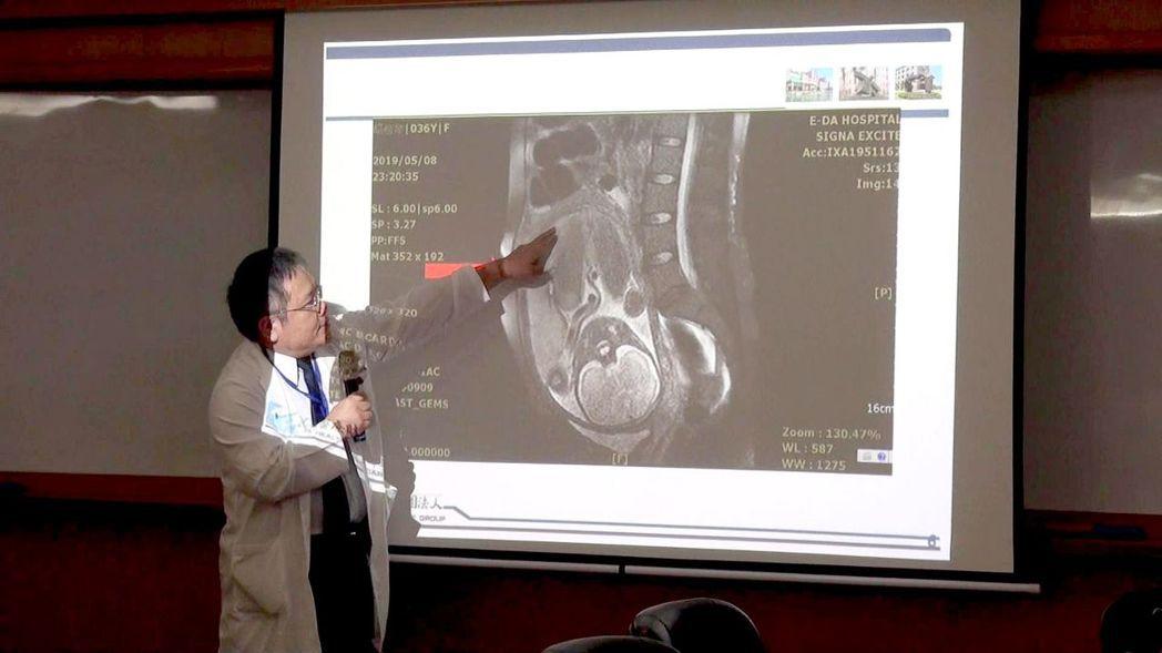 張志仰表示,穿透性胎盤是植入性胎盤中最嚴重的一種。記者王昭月/攝影