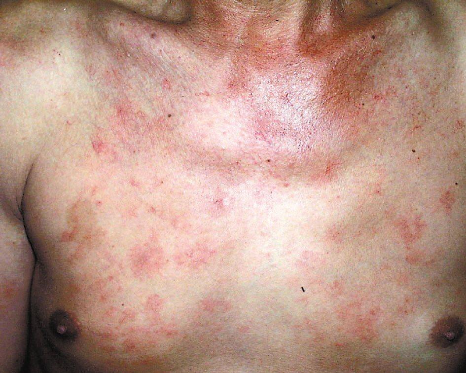 蜘蛛痣。照片提供/新光醫院皮膚科醫師張少平