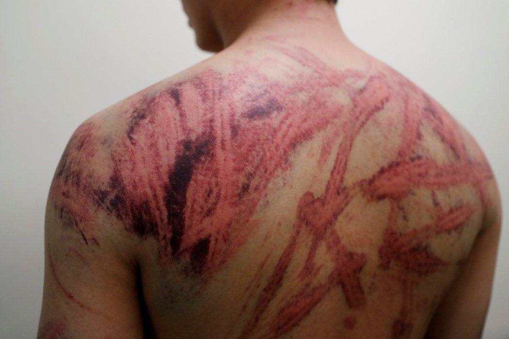 元朗事件中被打的受害者Calvin So,非本文當事人。 圖/路透社