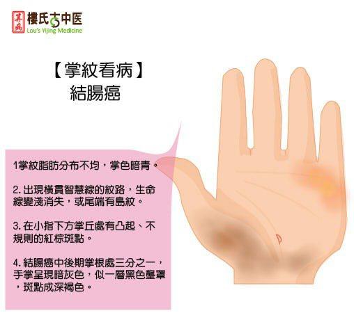 掌紋看健康(結腸癌)。圖/樓中亮中醫預防保健網授權提供。