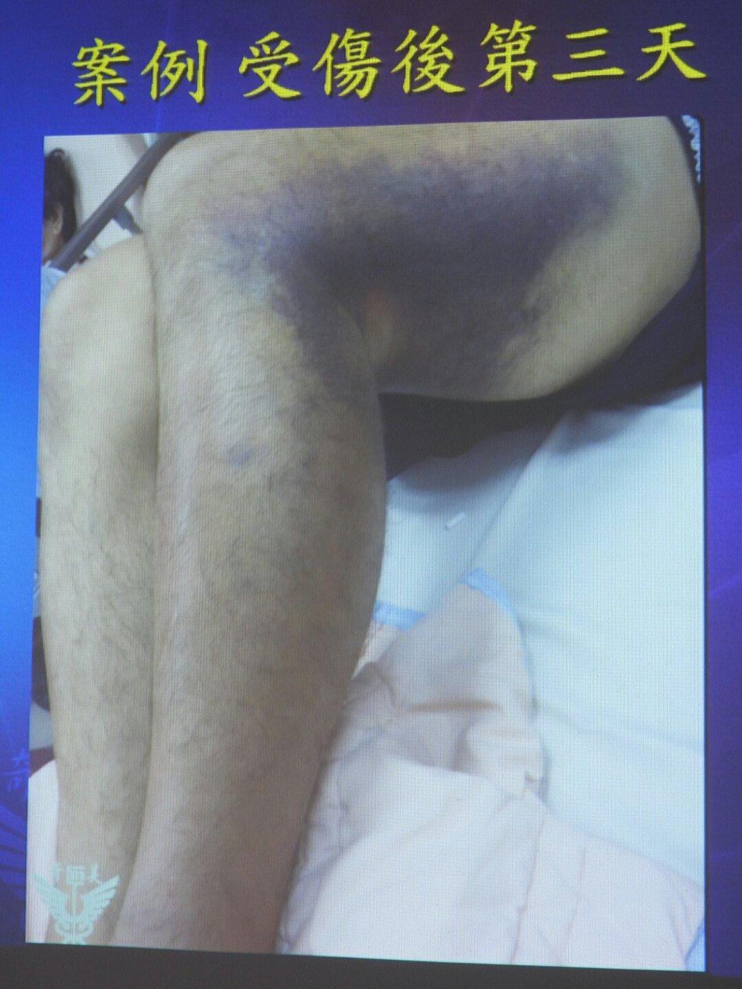 男子車禍後不久小腿動脈斷裂,3天後出現大片瘀青。記者周宗禎/攝影