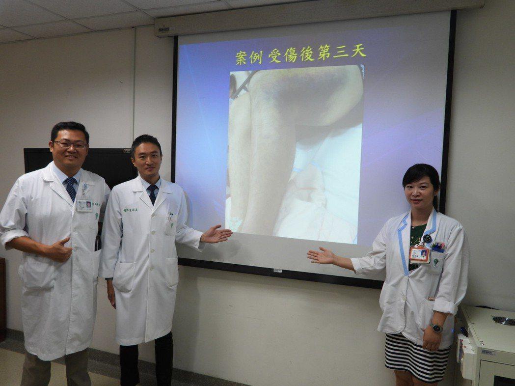 奇美醫護團隊成功搶救小腿動脈斷裂患者免於截肢。記者周宗禎/攝影