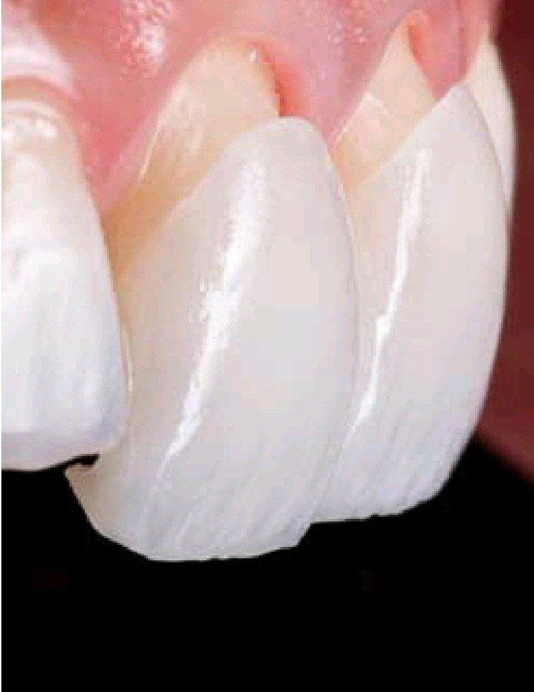 目前流行的瓷牙貼片,可以讓你在短時間內就擁有潔白整齊的牙齒。記者修瑞瑩/翻攝