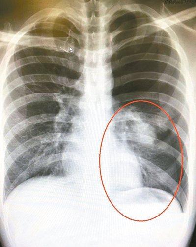 肺泡破裂後空氣進入胸腔,導致肺臟無法擴張,紅圈為塌陷的肺。 圖/台北慈濟醫院提供