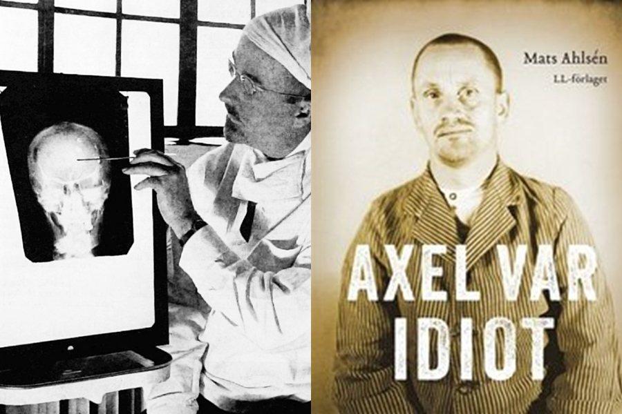 從1944年到1964年間,全瑞典進行了至少4,500次腦白質切斷術,接受手術的...