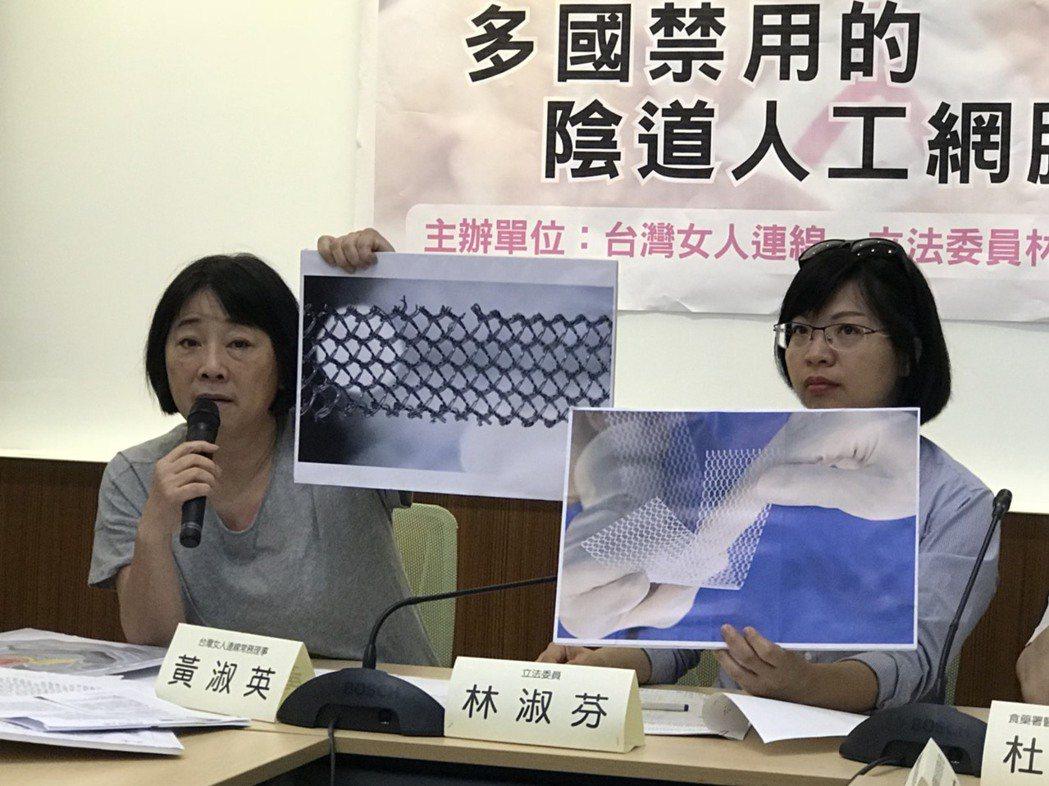 台灣女人連線以及立委林淑芬今召開記者會質疑,除上周乳房植入物下架外,另有一款處理...