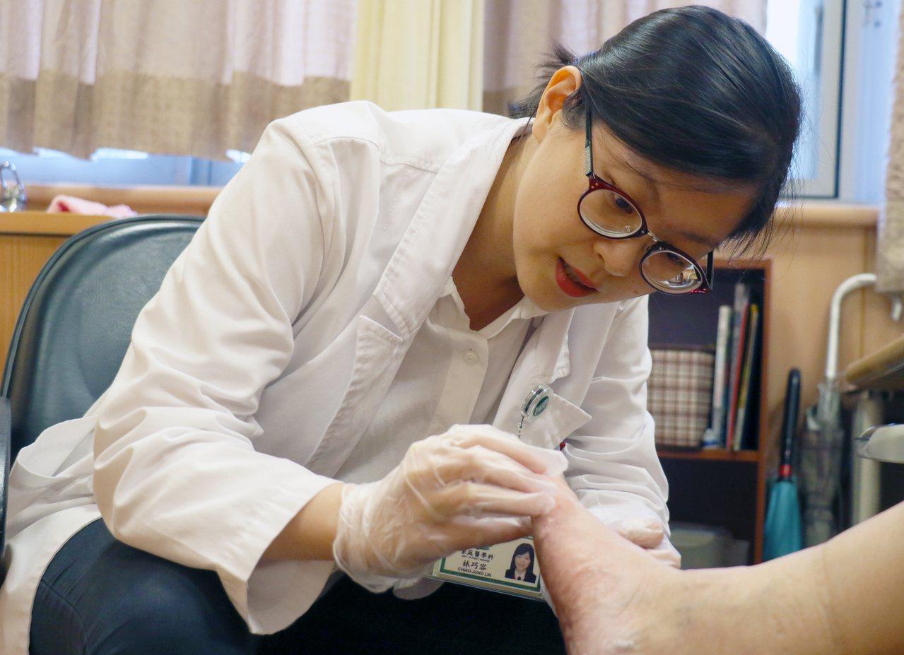 醫師提醒民眾,抺香港腳藥膏時要按摩,讓皮膚吸收藥效。圖/台中慈濟醫院提供