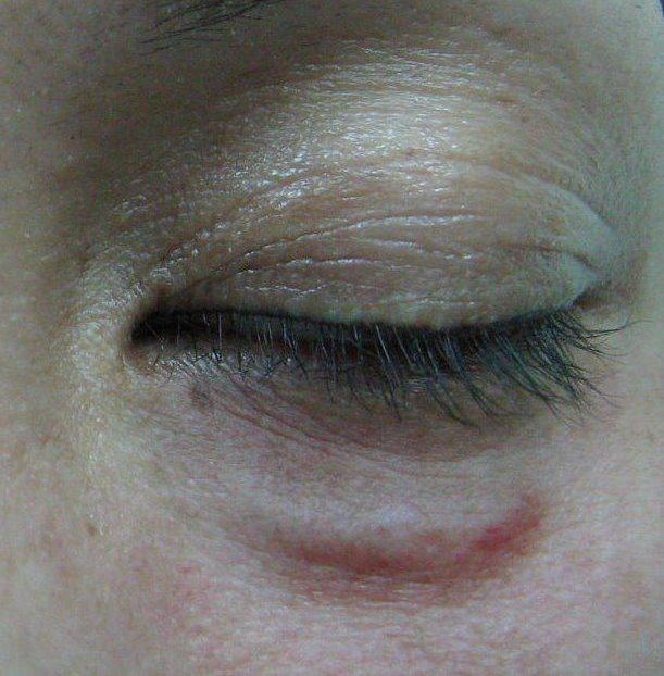 有愛美的消費者在臉上注射玻尿酸後,竟然在眼下出現像是毛毛蟲的突起物。圖/王正坤提...