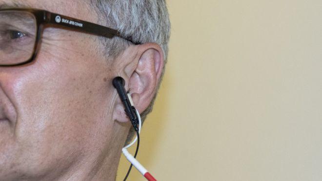 此療法經由耳朵傳送少量電流至體內,改善自律神經系統的平衡。(Photo by 網...