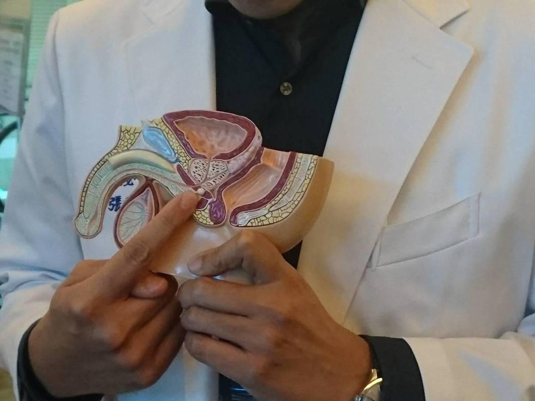 國立陽明大學附設醫院泌尿科醫師張鐸指出,因攝護腺增長速度增加,50歲以上男性有一...
